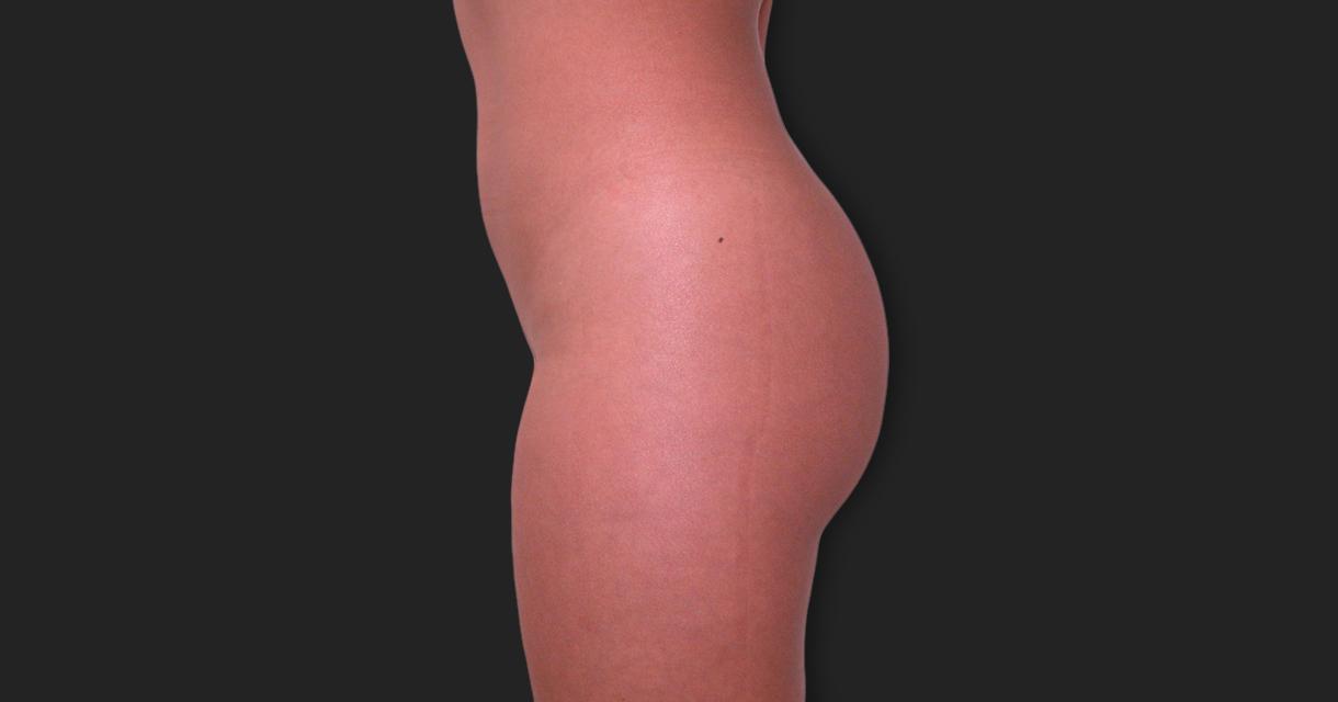 Lipofilling (Gluteoplasty)