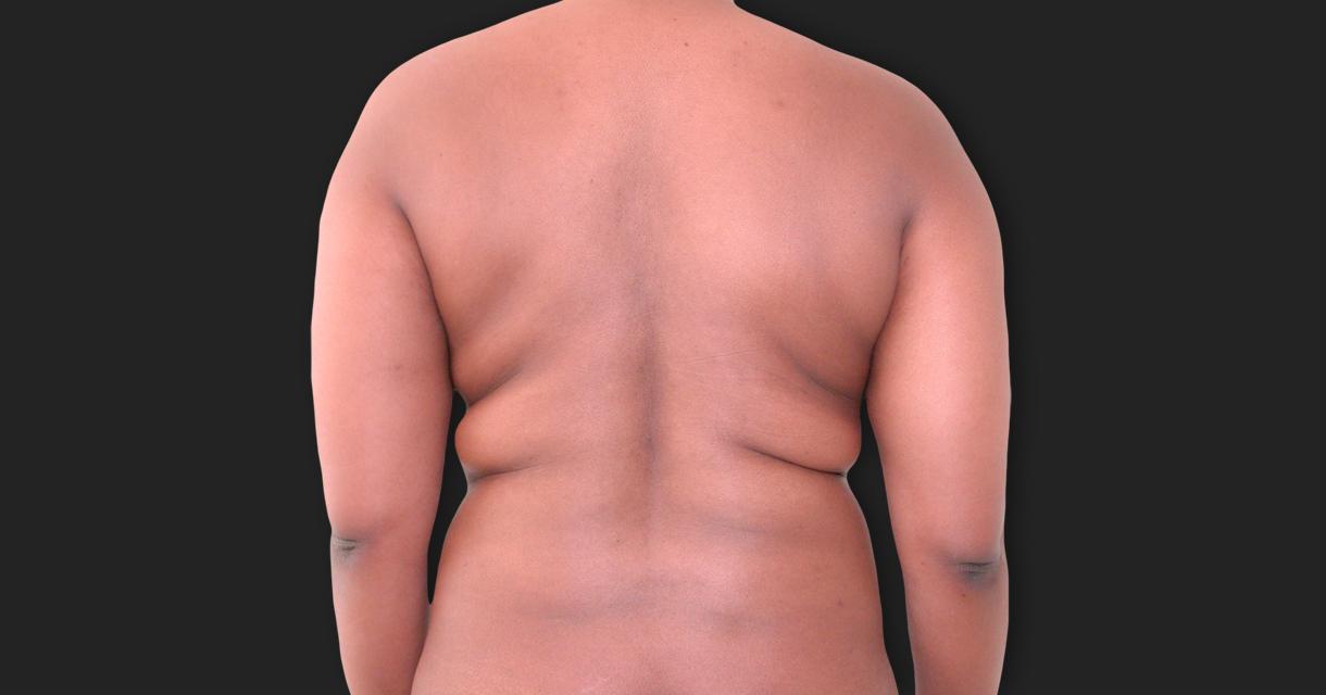 Lipomodeling (Lipoescultura)